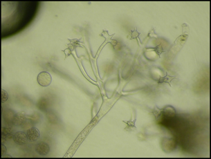 Fig. 2. Sporangia of impatiens downy mildew. Image kindly provided by Dr. Rane.