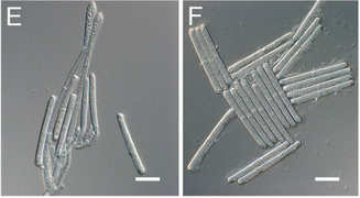 Fig. 3.  Conidia (spores) of the fungal pathogen Calonectria pseudonaviculata found to be responsible for Sarcococca blight. Image from Malapi-Wight et al. (2016)